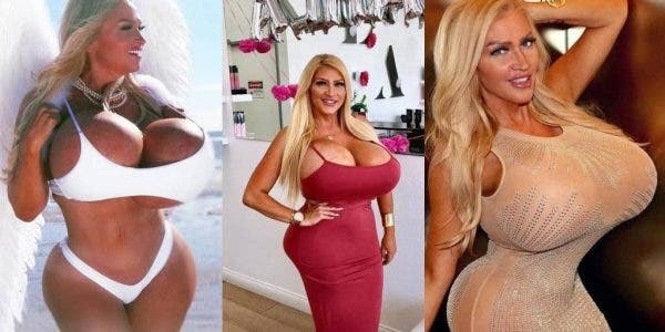 Ses seins de 10 kilos en ont fait une star sur Internet