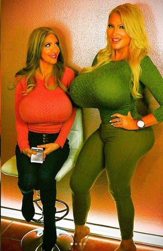 Cette femme est devenue célèbre sur les réseaux sociaux grâce à ses seins de 10 kilos
