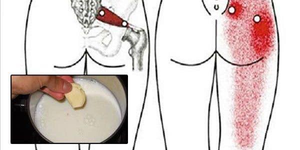 Si vous avez une sciatique ou un mal de dos, prenez ce remède et vous ne souffrirez plus jamais !