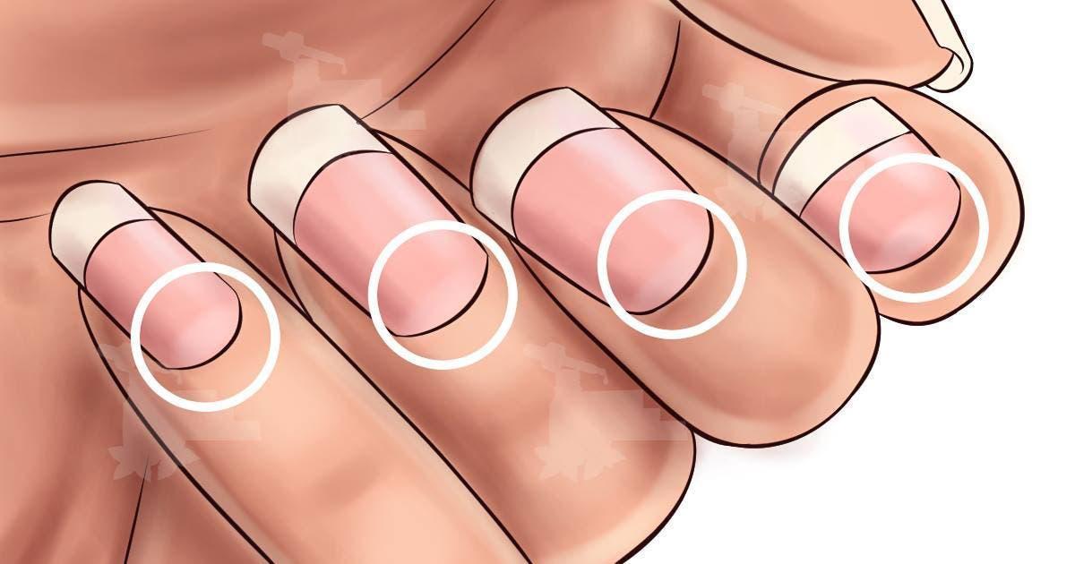 Si vous n'avez pas une forme de demi-lune sur vos ongles