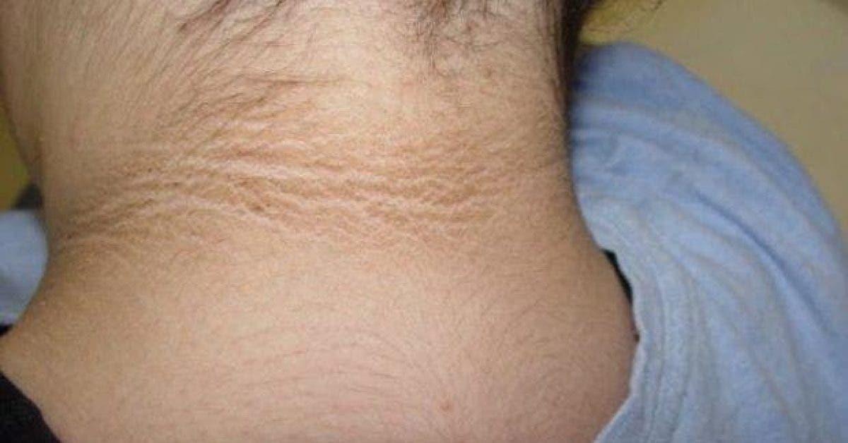 Si vous remarquez ce cercle sombre autour du cou de votre enfant vous devez vite lemmener chez le medecin 1
