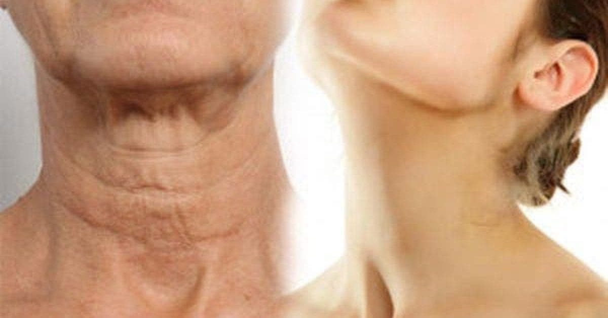Simple Ways On How To Make Your Neck Look Younger 2 1