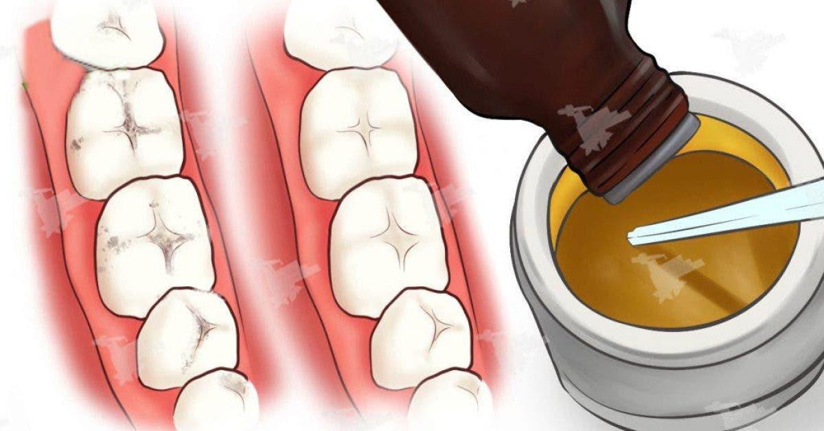 Soigner naturellement vos caries et la détérioration des dents à l'aide de ce puissant remède
