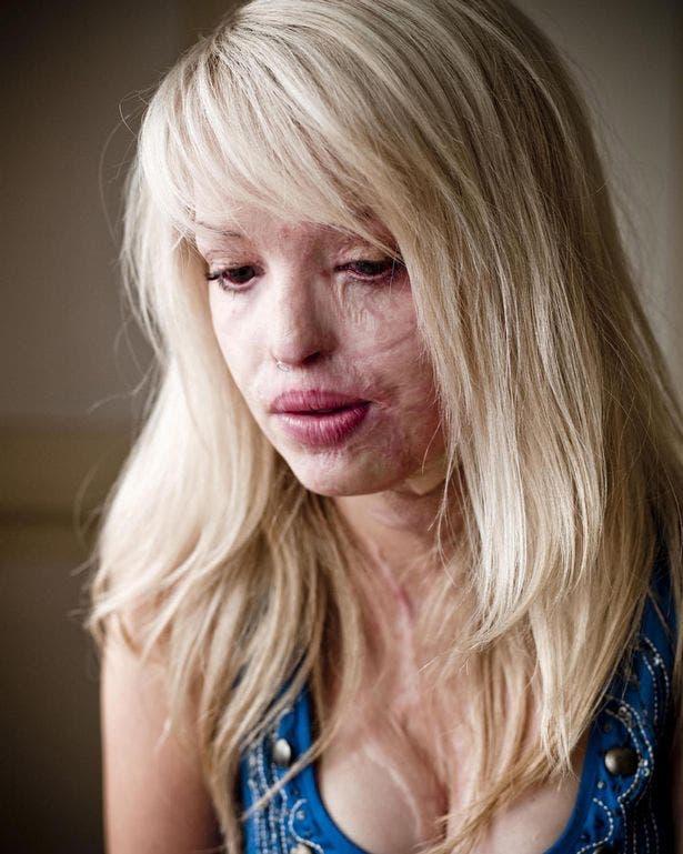 Son ex l'avait violée et lui a jeté de l'acide sur son visage