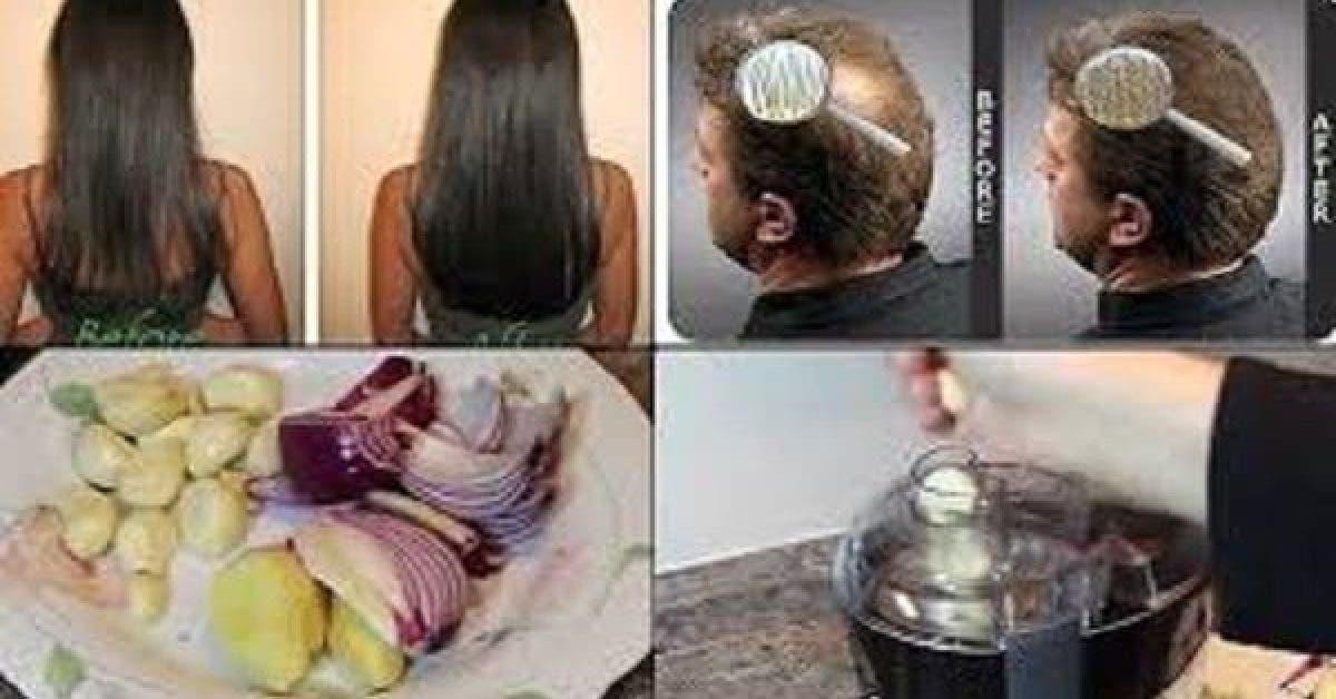 Stimulez la pousse de cheveux et stoppez leur chute grace a ces ingredients naturels 1