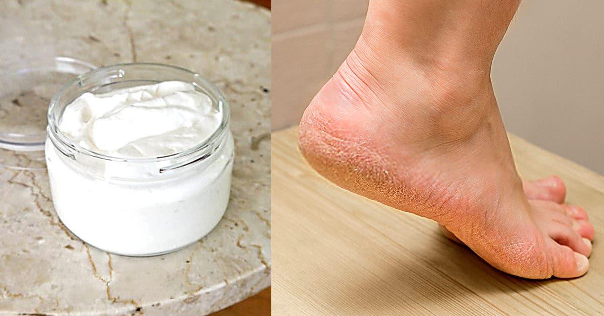 Talons fendillés : 11 remèdes de grand-mère imparables pour avoir les pieds doux
