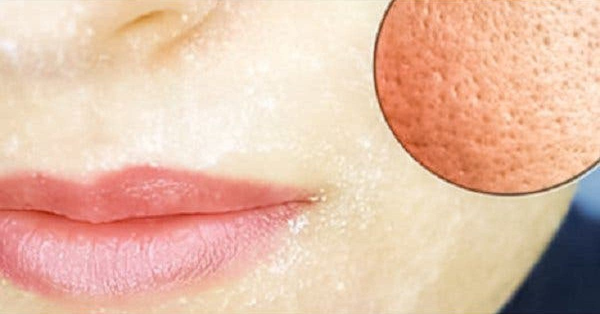 This Is the Only Ingredient You Will Need to Shrink Your Pores 1 1