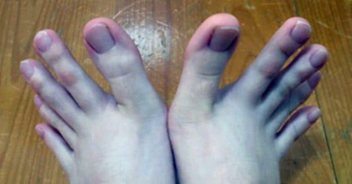 Tout le monde est obsédé par les pieds de cette femme, voici pourquoi