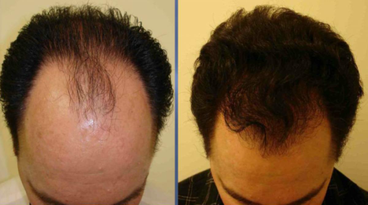 Tout le monde parle de ce masque naturel qui fait pousser les cheveux. Il est impressionnant