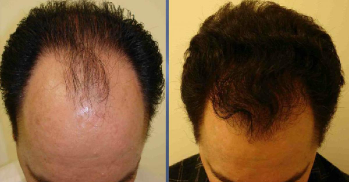 Tout le monde parle de ce serum naturel pour la croissance des cheveux 1