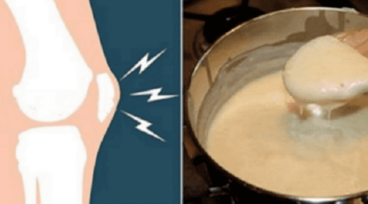 Tout le monde raffole de cette recette qui soulage les douleurs du genou et des articulations et ameliore la sante des os