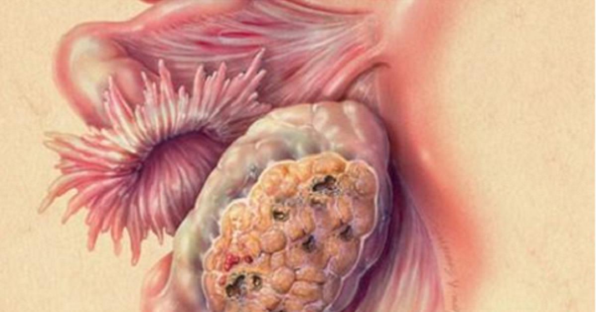 Toutes les femmes lutilisent alors quil double le risque de cancer des ovaires 1