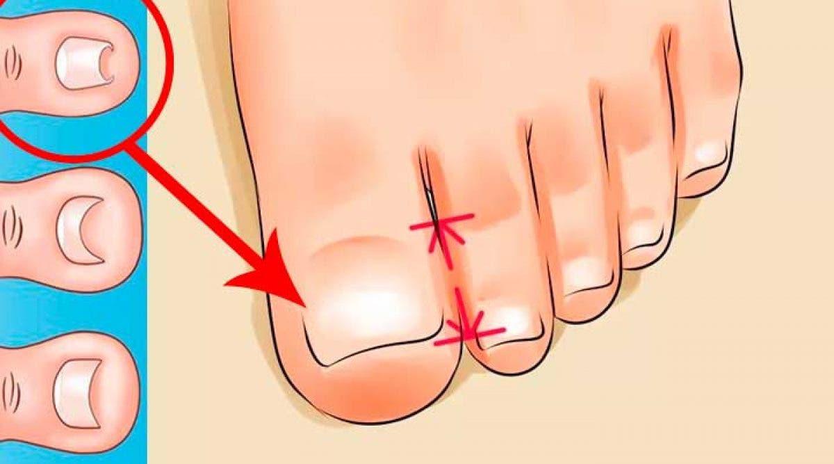 Traiter votre ongle incarné facilement et naturellement sans passer par une intervention chirurgicale