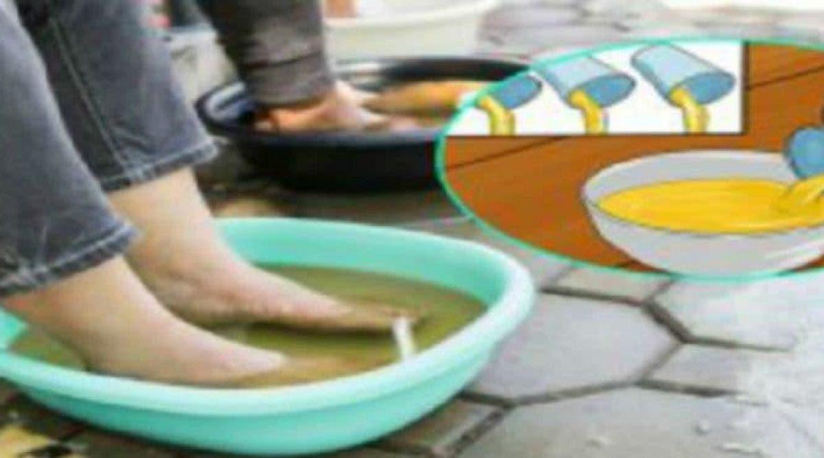 Trempez vos pieds dans le vinaigre une fois par semaine