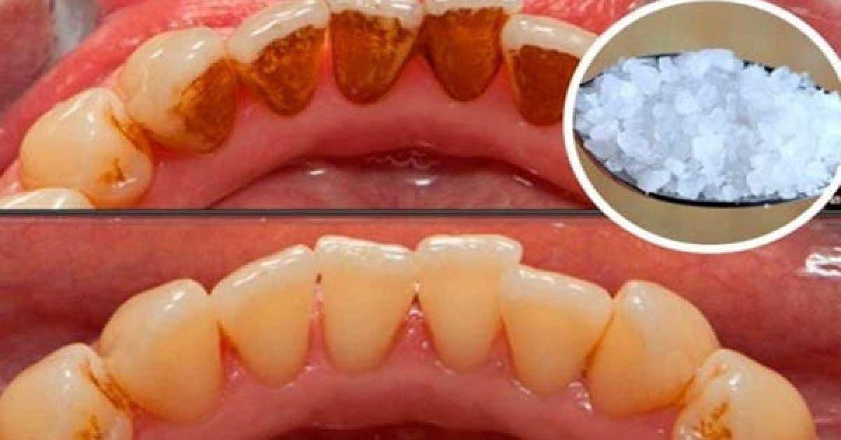 Ue recette pour blanchir les dents les plus jaunes et eliminer le tartre 1