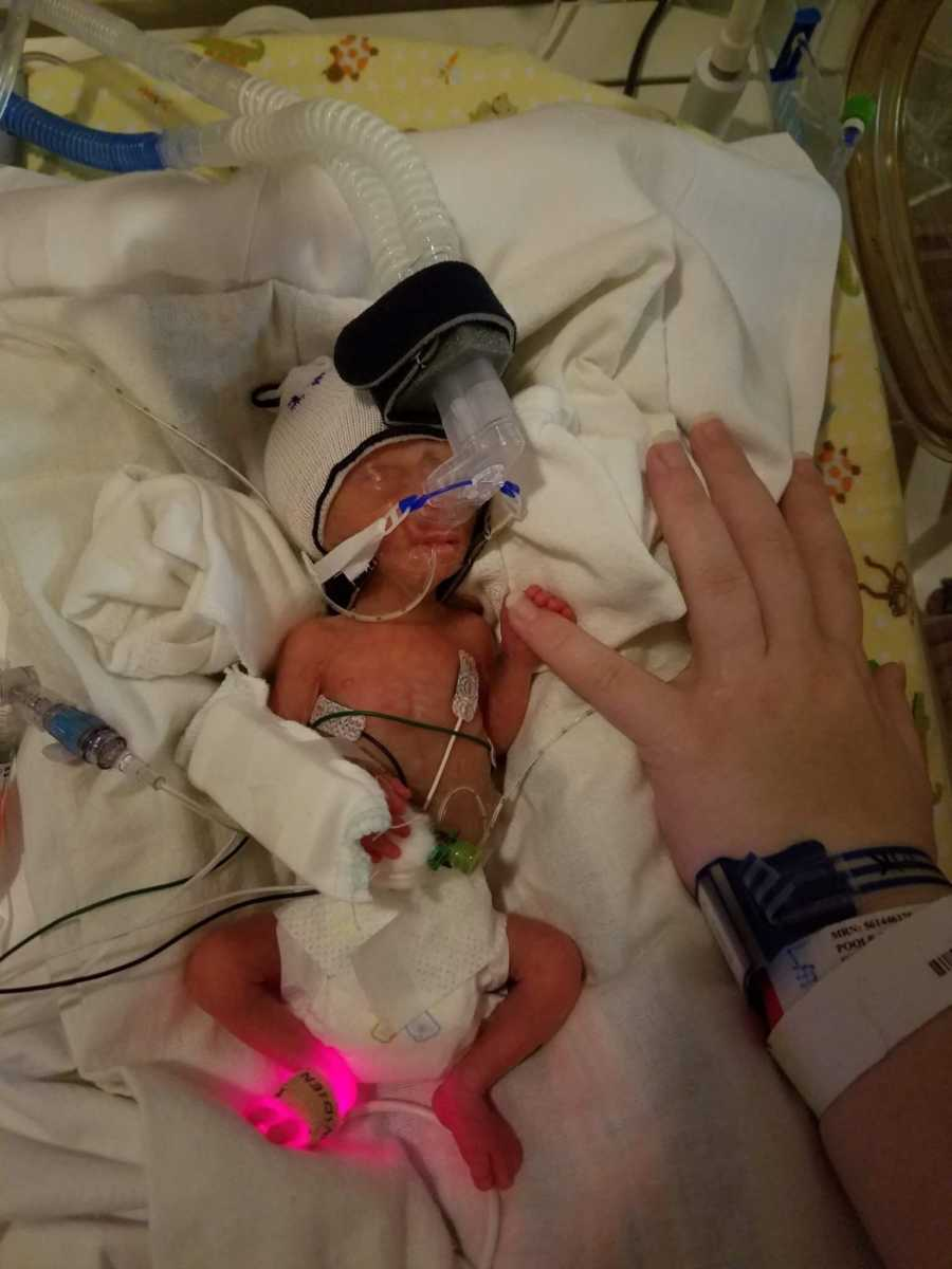 Un bébé de 400 grammes