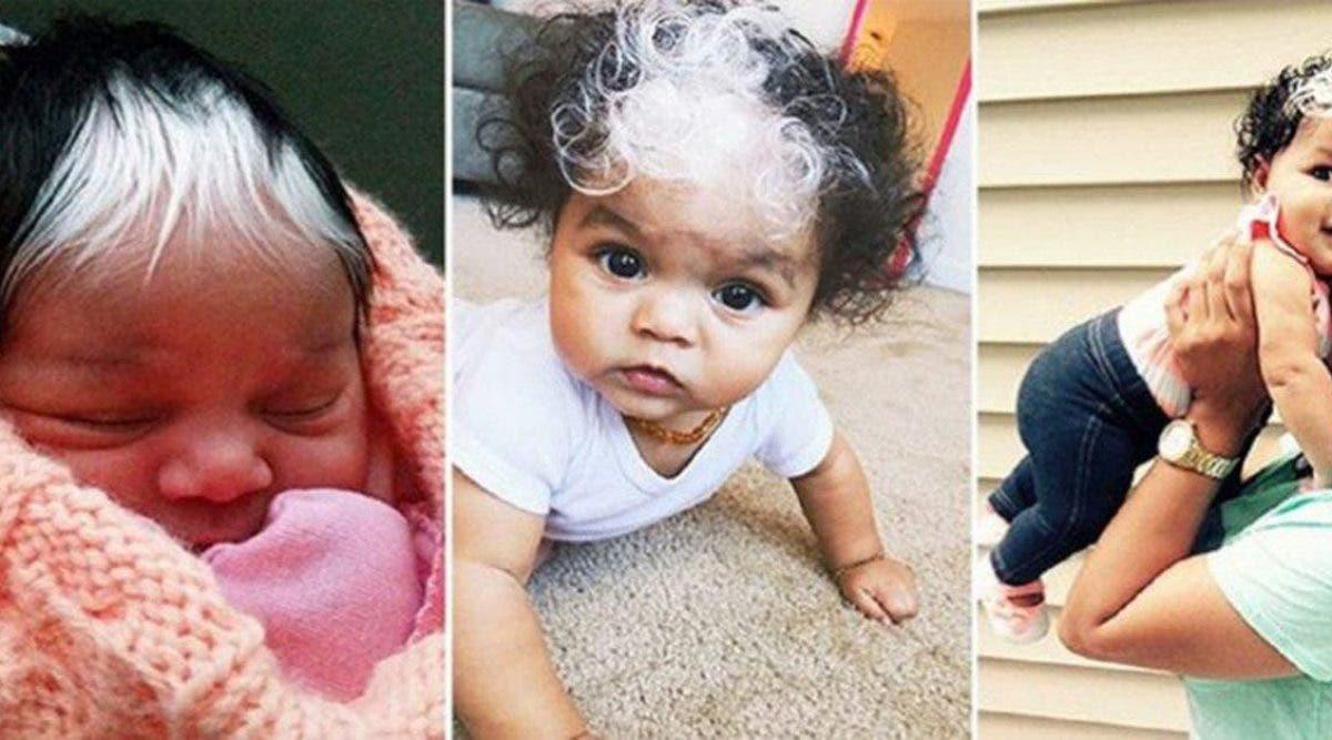 Un bébé est né avec des cheveux blancs