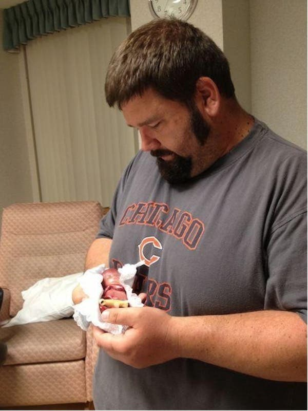 Un bébé est né lors de sa 19ème semaine