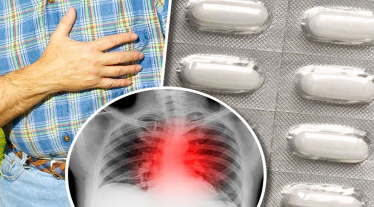 Un cardiologue affirme que les statines font plus de mal que de bien