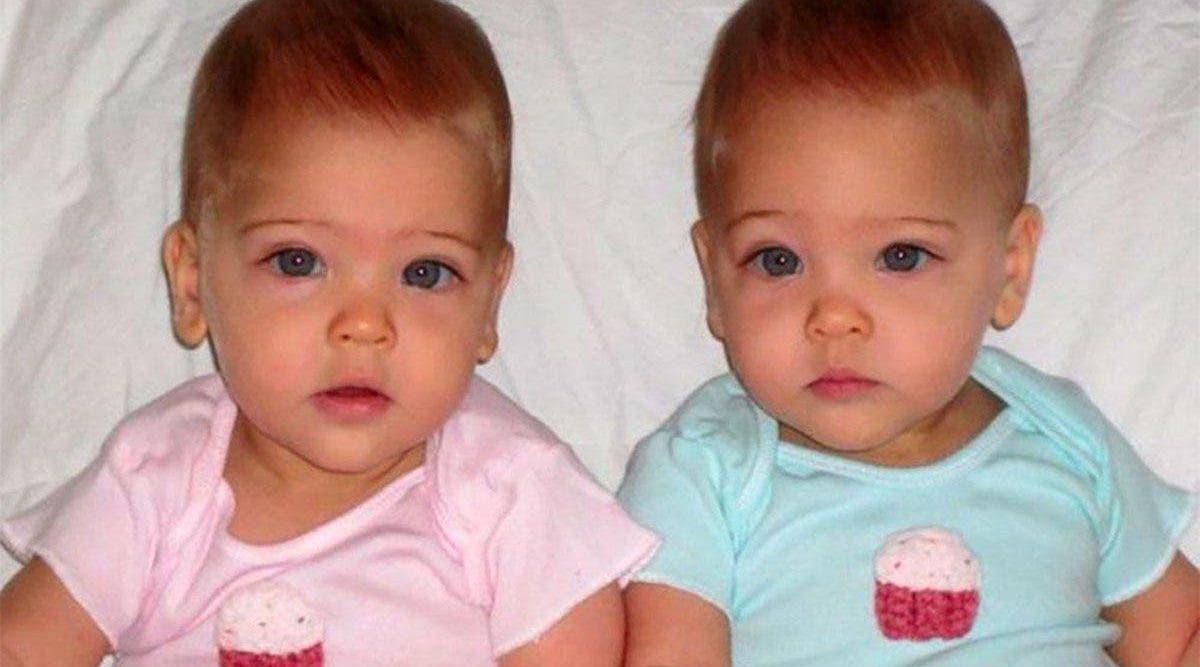 Un couple à donné naissance aux « plus belles jumelles du monde » , regardez à quoi elles ressemblent aujourd'hui