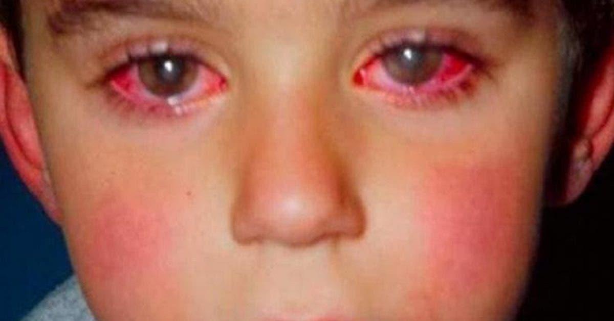 Un enfant a perdu 75 % de sa vision à cause d'un objet que vous avez certainement chez vous