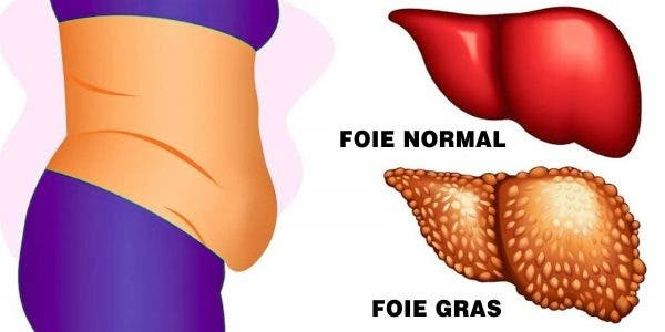 Un foie gras peut vous rendre malade et fatigué