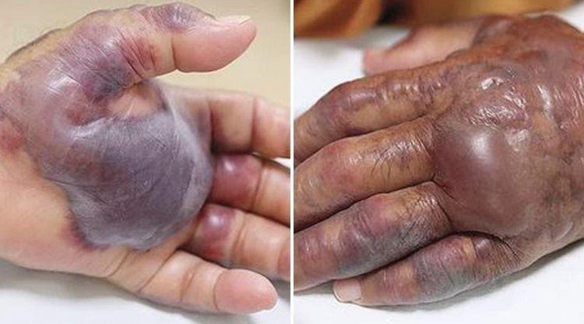 Un homme a été amputé de la main 12 heures après avoir mangé des sushis