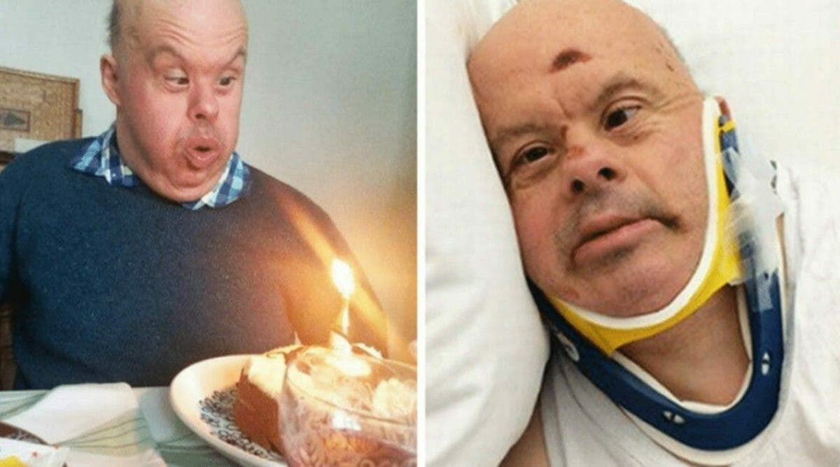 Un homme atteint de trisomie 21 décède à 61 ans après que l'hôpital l'ait laissé mourir de faim
