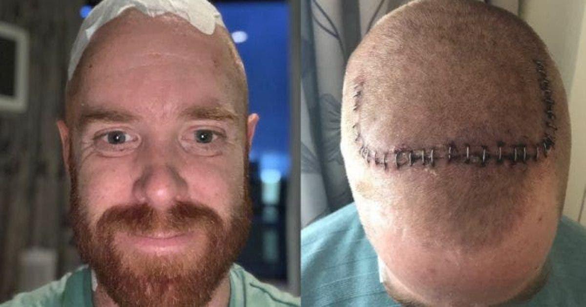 Un homme découvre qu'il souffre d'une forme précoce de la maladie de Parkinson. Les médecins ont réussi à la traiter à l'aide d'un stimulateur de cerveau.