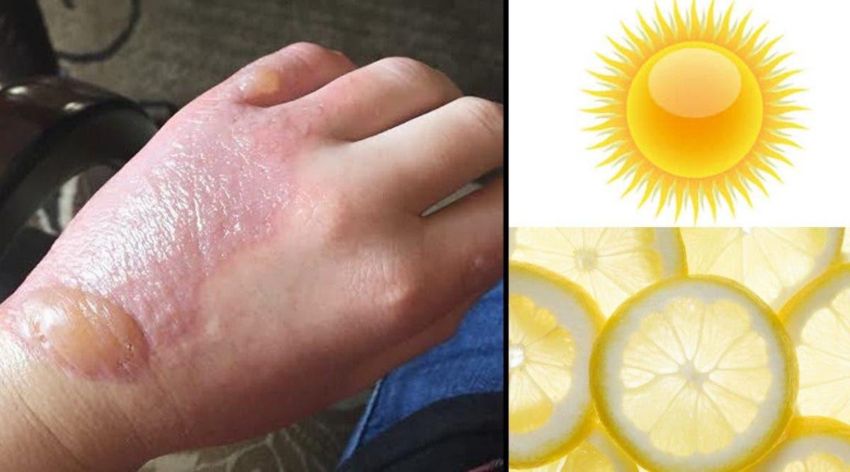 Un-medecin-previent-les-personnes-qui-touchent-du-citron-en-plein-soleil