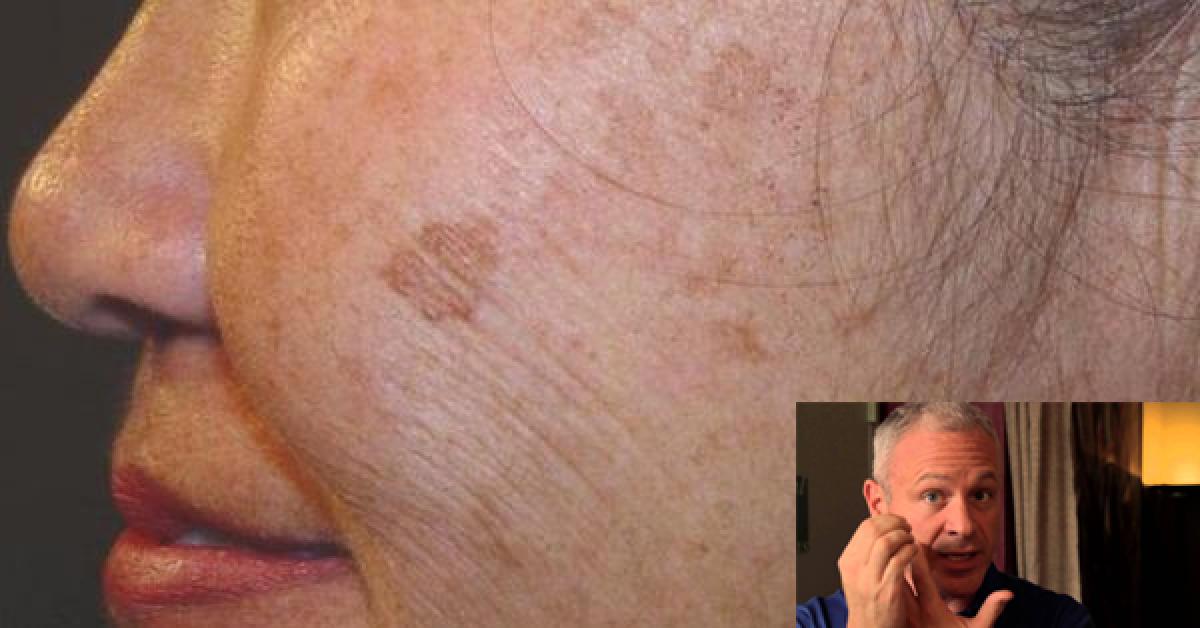 Un médecin révèle un remède simple et naturel pour éliminer les taches brunes sur votre peau