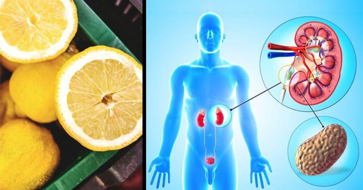 Un moyen simple de nettoyer vos reins avec du citron