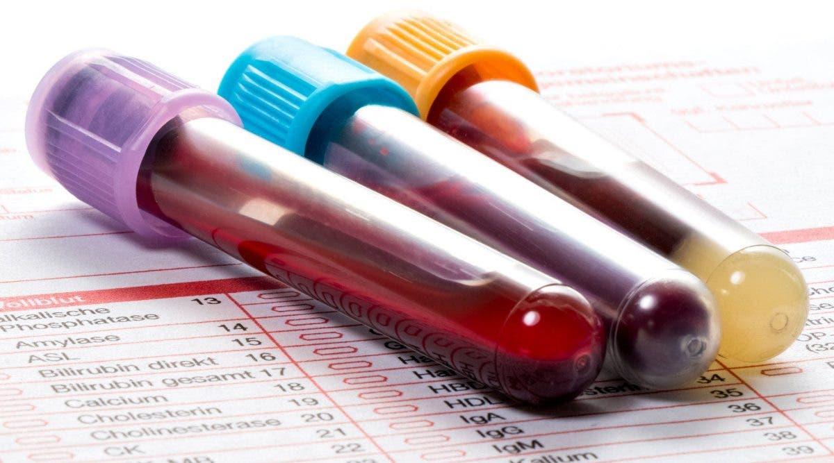 Un nouveau test sanguin pour la fibromyalgie offre de l'espoir à des millions de personnes souffrant de douleurs chroniques