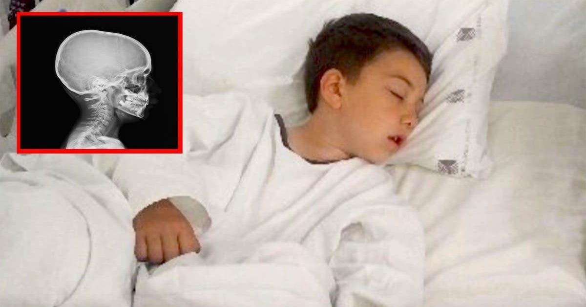Un petit garçon se retrouve à l'hôpital après une erreur de sa maman en cuisine