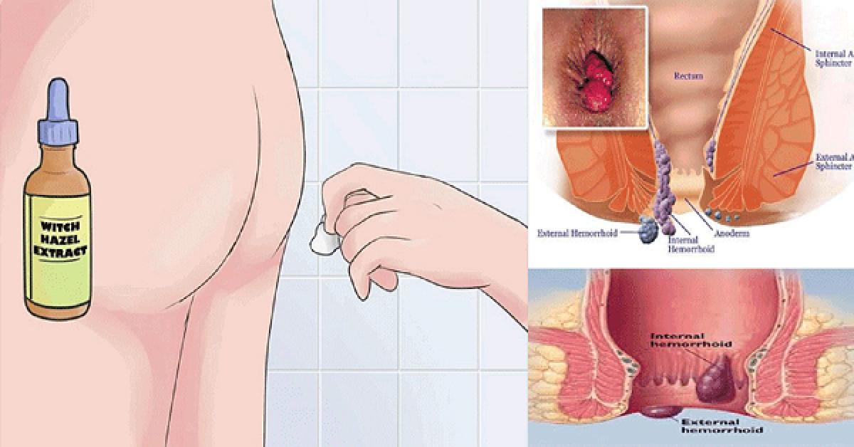 Un remède puissant pour se débarrasser de vos hémorroïdes à la maison !