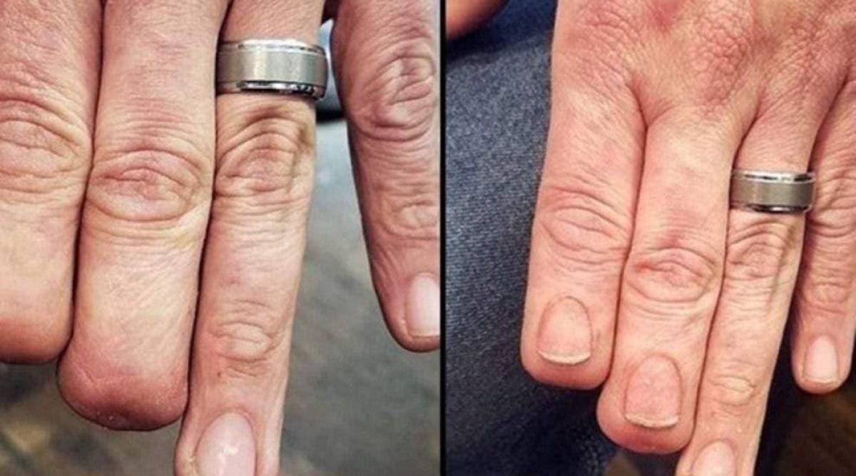 Un tatoueur restaure des ongles sur un homme qui a perdu deux doigts