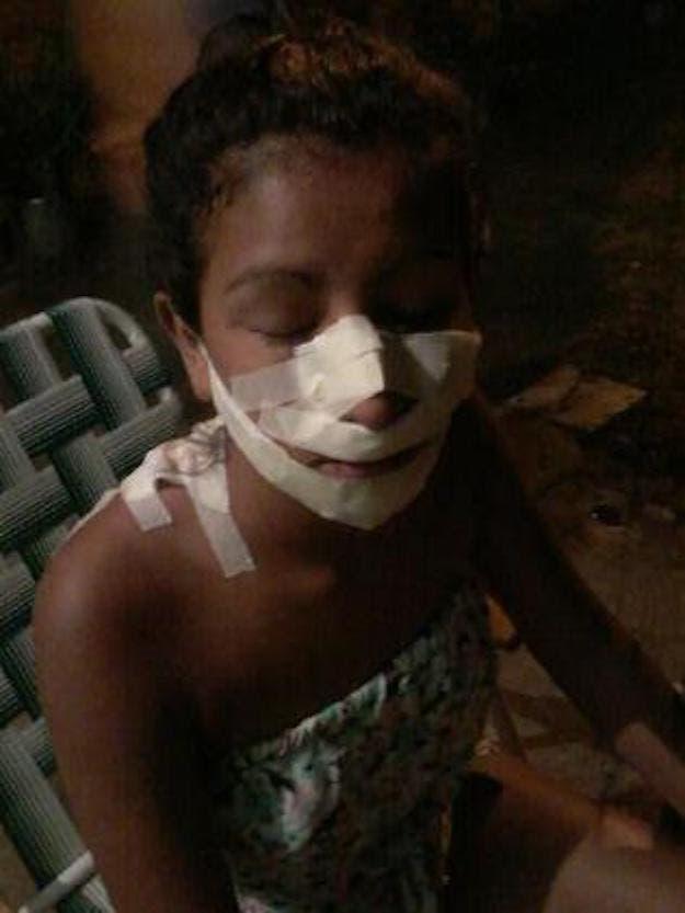 Une adolescente de 15 ans est défigurée