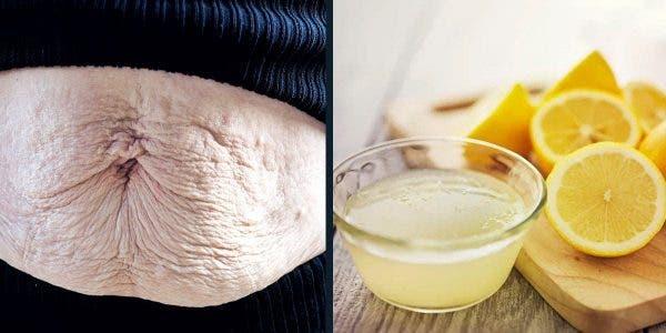 Une ancienne au citron qui efface les vergetures et vous offre une peau liftée et jolie