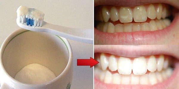 Une astuce puissante pour avoir des dents blanche