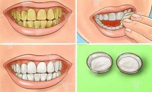 Une astuce puissante pour blanchir vos dents avec du bicarbonate de soude