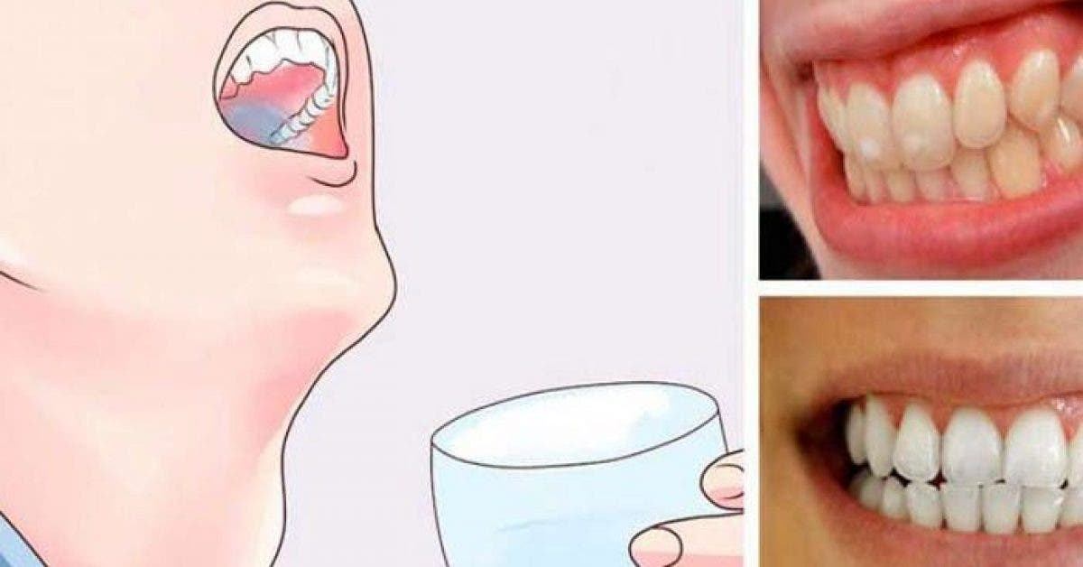 Une astuce puissante pour vous debarrasser des dents jaunes 1