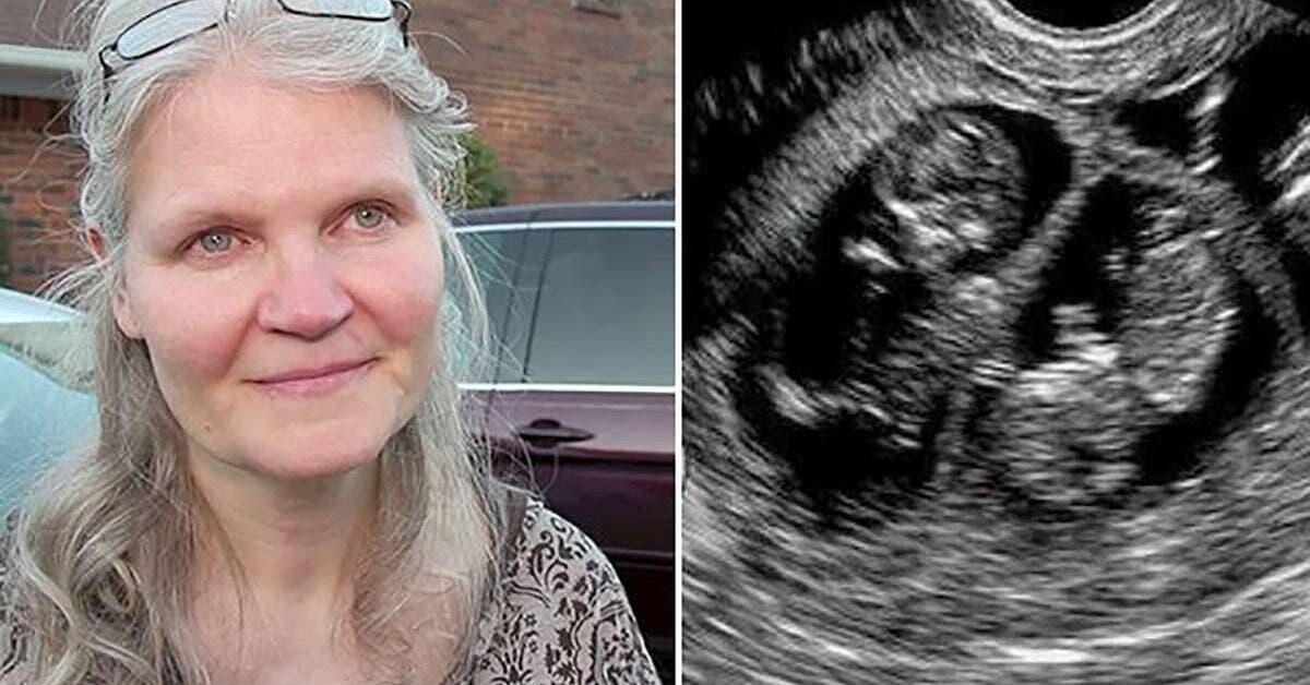 Une femme de 42 ans est enceinte de triplés