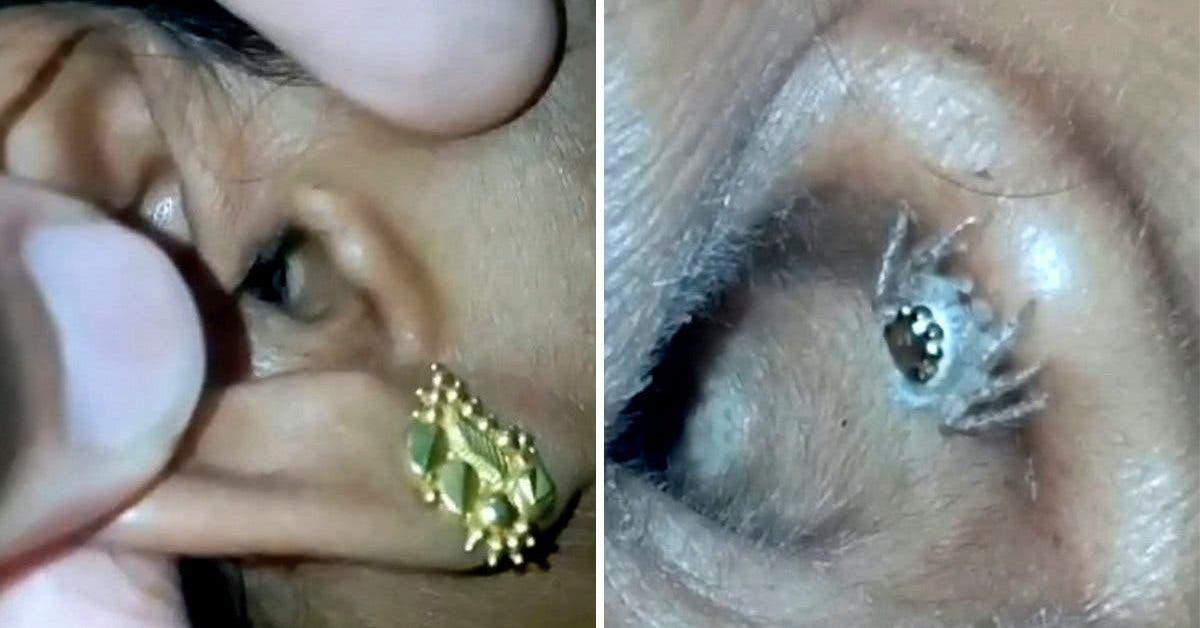 Une femme découvre que ses maux de tête sont causés par une araignée vivant dans son oreille