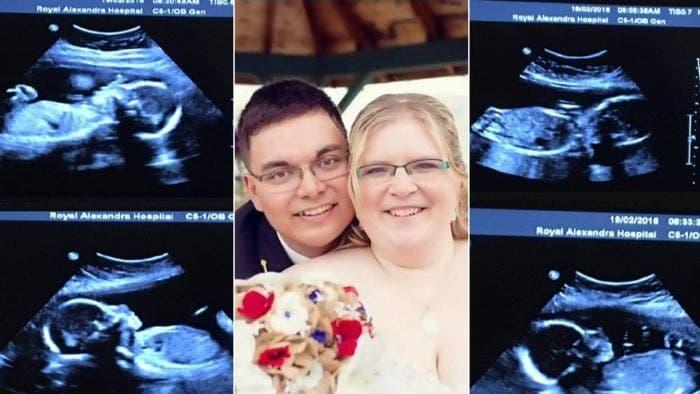 Une femme donne naissance à des quadruplés