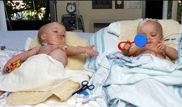 Une femme donne naissance aux triplées les plus rares du monde