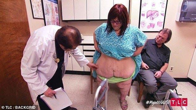 Une femme obèse