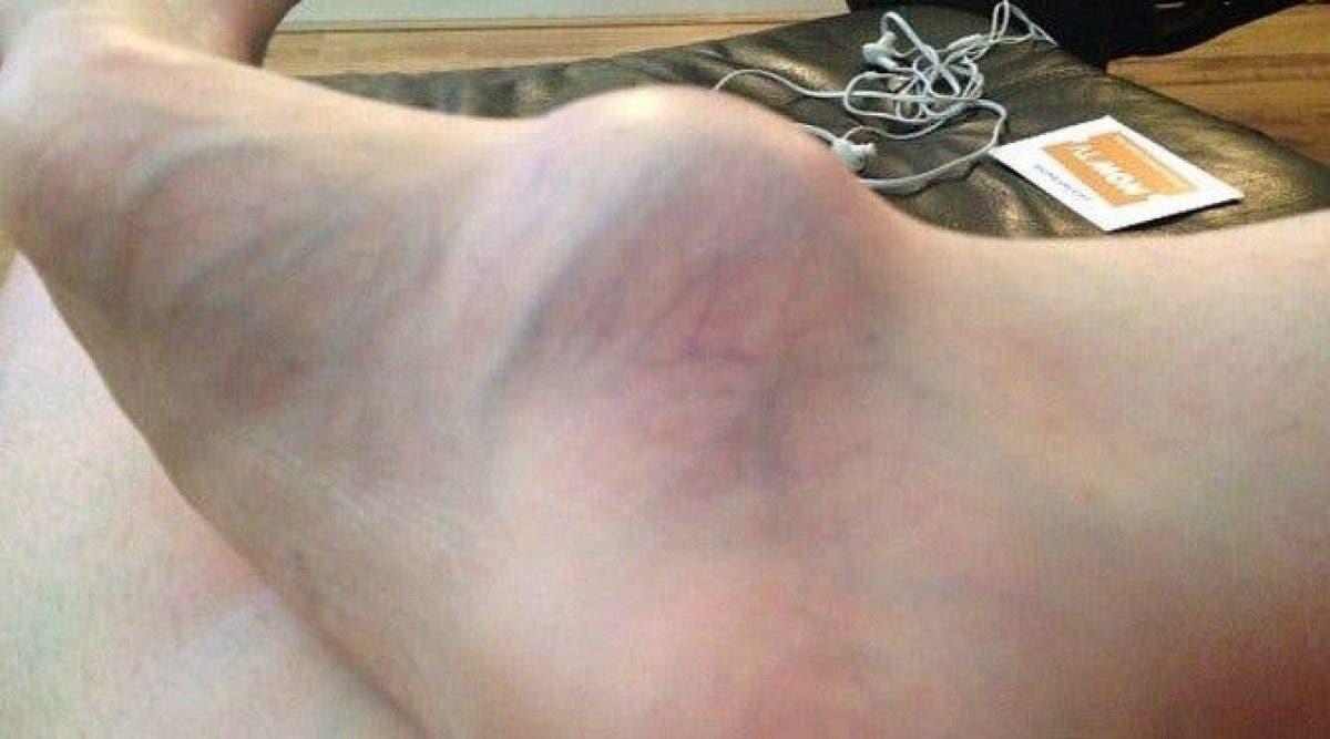 Une femme rend visite à un médecin pour discuter de son pied enflé