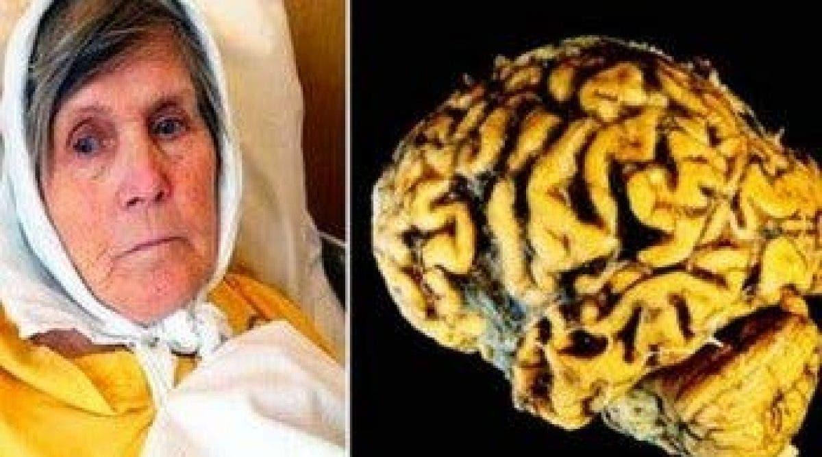 Une femme révèle comment ne jamais avoir Alzheimer en faisant une chose simple chaque jour