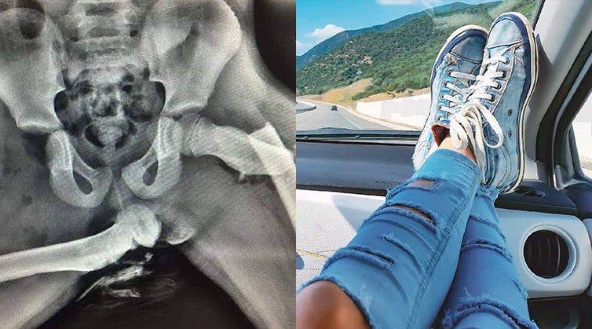 Une femme se fracture les hanches après avoir mis ses pieds sur le tableau de bord d'une voiture