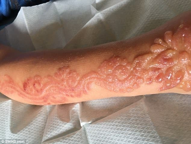 Une fillette de 7 ans souffre de brulures chimiques causees par un soin de beaute a la mode 2 1